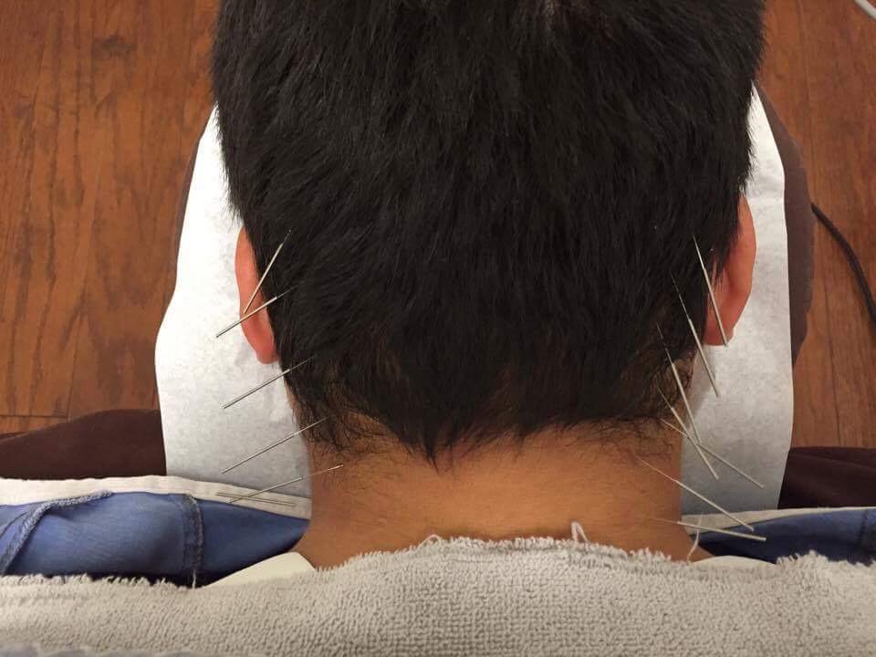 鍼治療 / 頭痛